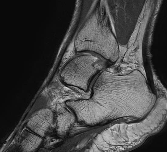 Ankle scanned using Magnetica's 3T dedicated Extremity MRI system